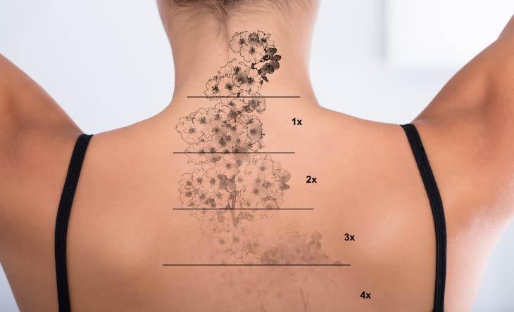 Tattoos entfernen - Methoden im Überblick