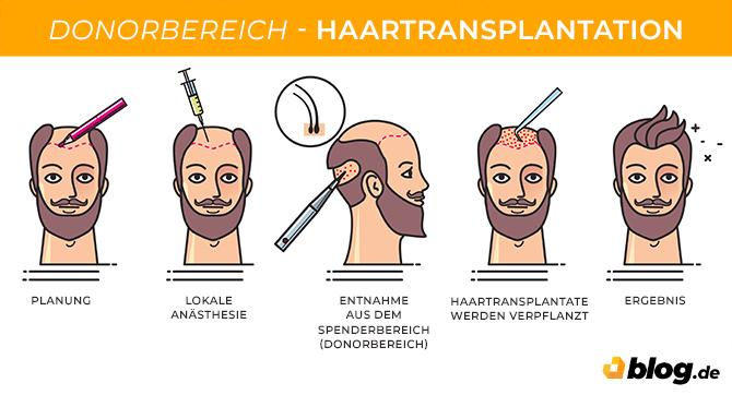 Haartransplantation - Infografik