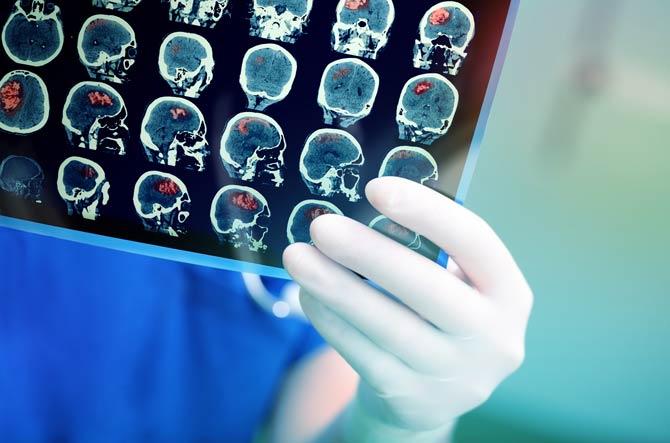Schlaganfall - Unterversorgung des Gehirns mit Sauerstoff