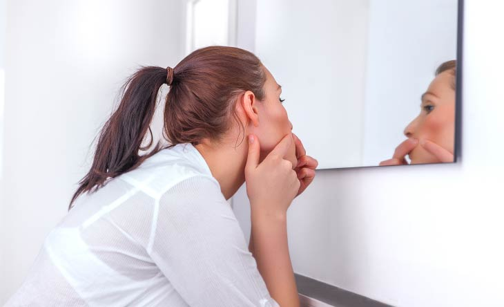 Tipps gegen Mitesser