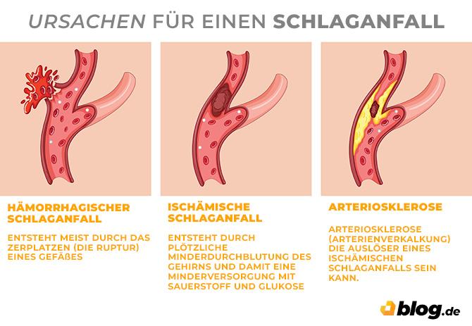 Infografik - Ursachen für einen Schlaganfall