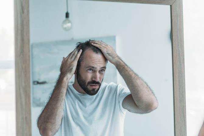 Entwicklung zur Glatze