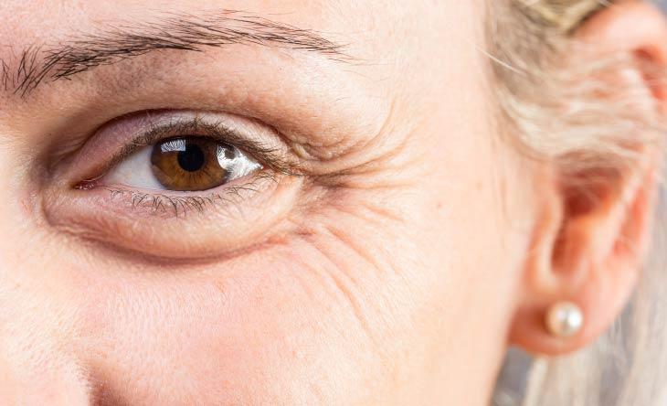 Tipps gegen Tränensäcke