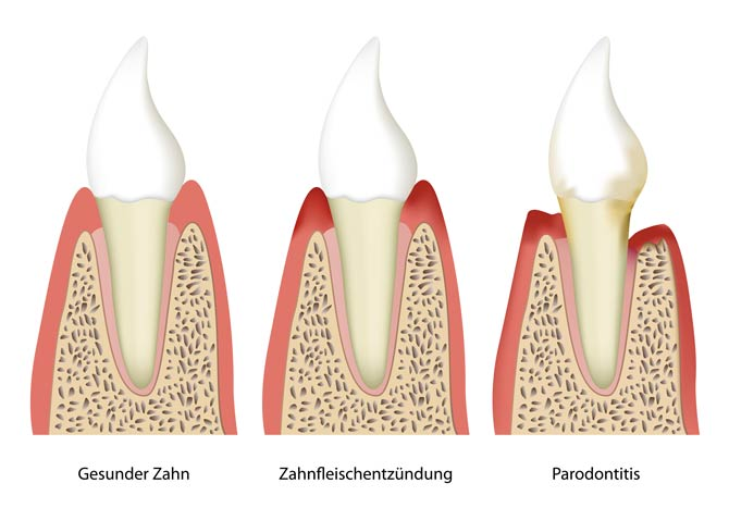 Parodontitis - Zahnbettentzündung